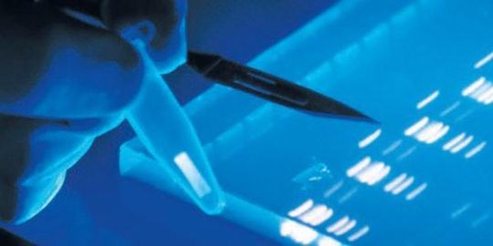 Elektrophorese & Analyse