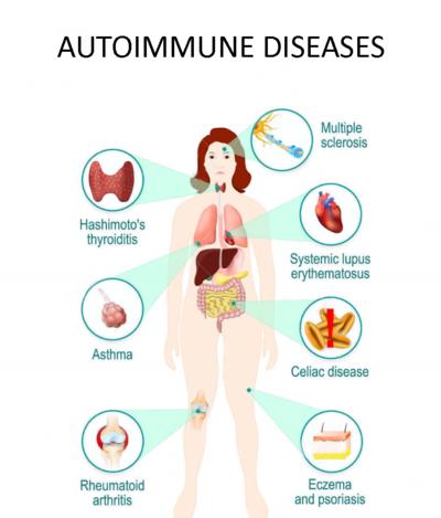 Autoimmunerkrankung Übersicht