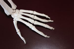 Rheumatoide Arthritis